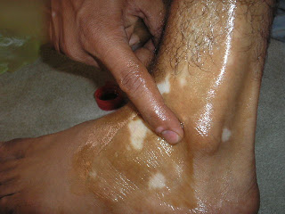 Anti Vitiligo Oil Treatment