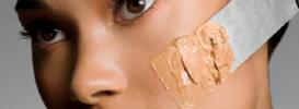 Beautiful Vitiligo Makeup