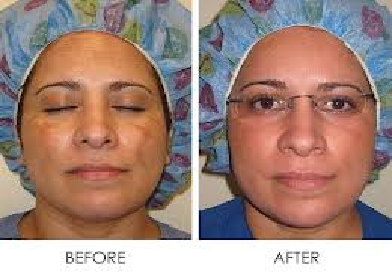 Cosmelan Depigmentation Treatment & Advantages