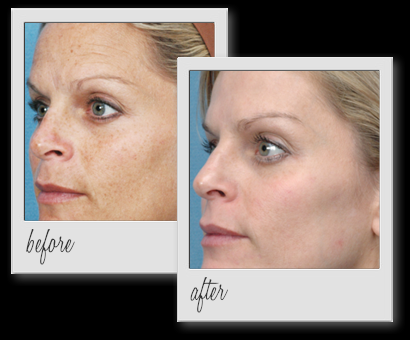 There are various treatments involved in treating hyperpigmentation    Hyperpigmentation Face Before And After
