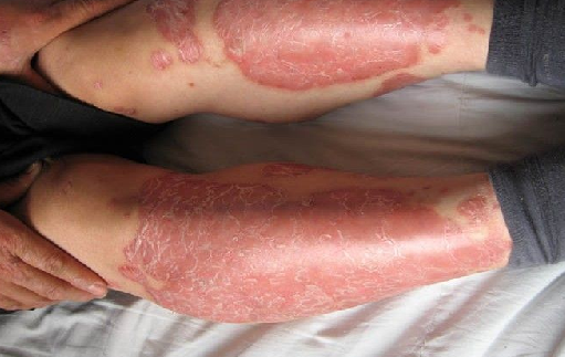 Side Effects Of Vitiligo Cover Lotion