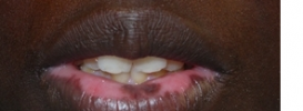Vitiligo On Lips