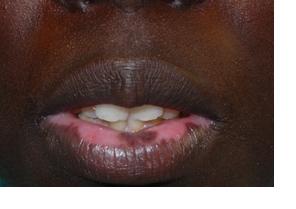 Natural Treatment For Vitiligo On Lips