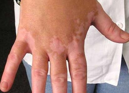 Vitiligo Organics
