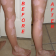 Vitiligo Protopic Results
