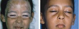 Vitiligo Repigmentation