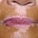 Vitiligo Spread