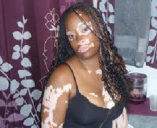 Vitiligo,